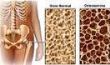 osteoporose-osso-treino de forca-calcio